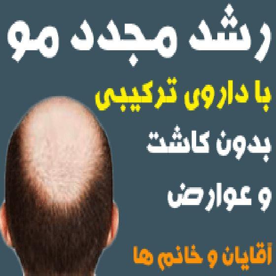 رشد مجدد مو بدون کاشت با داروی ترکیبی و تضمینی ،ویژه آقایان و خانم ها