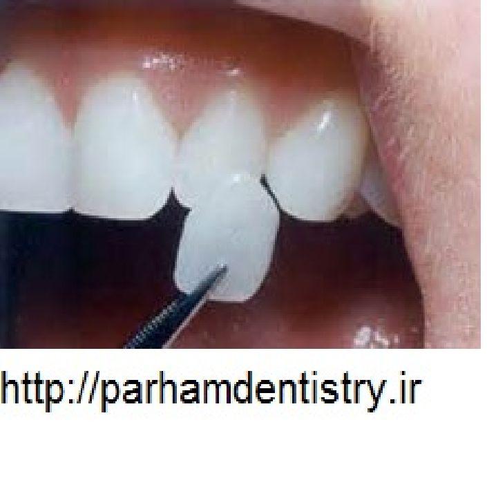 دندانپزشکی | ایمپلنت | لامینت | طرح لبخند | سفید کردن دندان